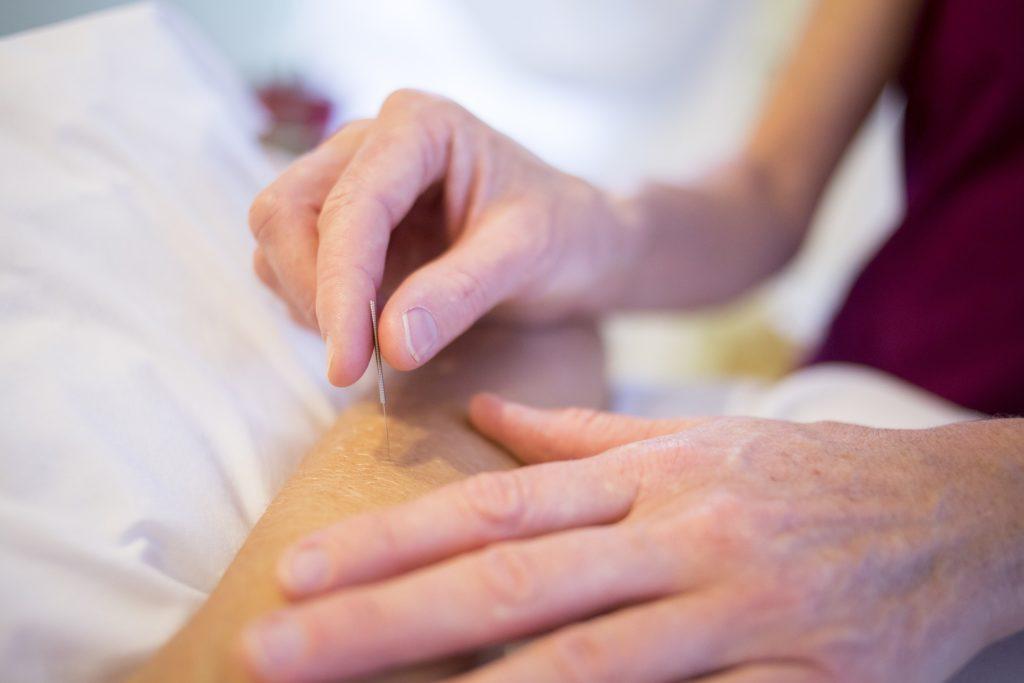 Pourquoi faire de l'acupuncture