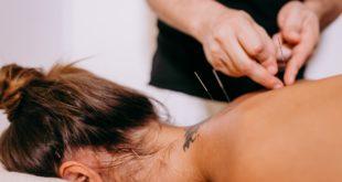 L'acupuncture pour maigrir : perdez du poids grâce à la médecine chinoise